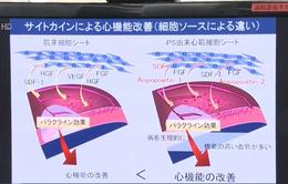 Điều trị bệnh tim bằng tế bào đa năng cảm ứng