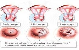 Hà Nội: Tổ chức khám tầm soát ung thư cho nữ công nhân lao động