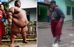 Cậu bé nặng nhất thế giới đã trút bỏ được 83 kg nhờ phẫu thuật