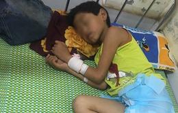 Bé trai 11 tuổi bị tổn thương não do uống... hơn 1 lít rượu