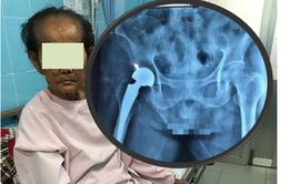 Cứu sống bệnh nhân cao tuổi bị gãy cổ xương đùi