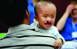 """Đà Nẵng: Gần 100 trẻ em nghèo được khám sàng lọc qua chương trình """"Nụ cười nhân ái"""""""