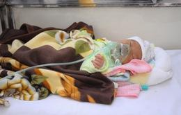Hoàn cảnh đáng thương của bé trai 5 ngày tuổi bị mắc tim bẩm sinh
