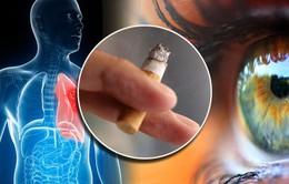 Hút thuốc lá gây nên các bệnh về mắt