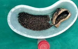 4.100 viên sỏi trong túi mật của một bệnh nhân ở Ấn Độ