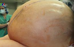 Cắt khối u buồng trứng nặng gần 60 kg cho một phụ nữ ở Mỹ