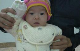 Bố mẹ bất lực nhìn con gái 8 tháng tuổi nguy kịch trước bệnh tim bẩm sinh
