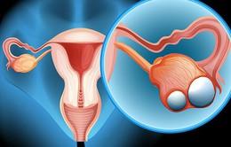 Ba chị em gái ruột cùng mắc u buồng trứng