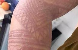 Du khách cảnh báo những hình xăm henna giả có thể gây hại tới sức khỏe