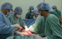 Phẫu thuật cứu sống sản phụ nhau tiền đạo trung tâm, nhau cài răng lược hiếm gặp