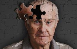 Những nguyên nhân gây bệnh Alzheimer