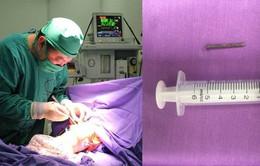 Phẫu thuật lấy đinh sắt trong tá tràng bé trai 9 tuổi