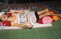 Xót xa trước bé 10 tuổi chỉ nặng... 12kg vì bệnh hiểm nghèo