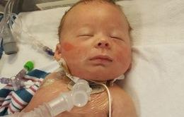 6 lần chết đi sống lại của em bé sơ sinh