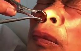 Gắp đỉa trong lỗ mũi bệnh nhân