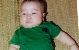 Bé trai tim bẩm sinh 6 tháng tuổi cần được giúp đỡ