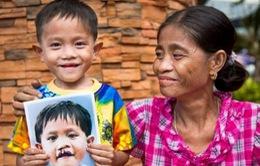 Phú Yên: Phẫu thuật nhân đạo cho bệnh nhân dị tật bẩm sinh