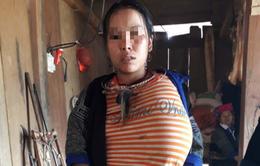 Giải cứu cô gái trẻ bị khối u khổng lồ ở ngực trái