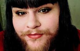 Cô gái nuôi râu tự tin xuất hiện trên sóng truyền hình
