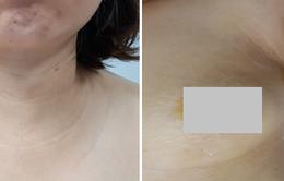 Ứng dụng thành công phẫu thuật nội soi điều trị u tuyến giáp