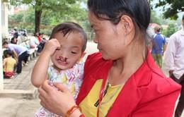 Khám và phẫu thuật miễn phí cho trẻ khuyết tật tại Điện Biên