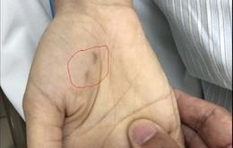 Chủ quan không tiêm phòng:  Một bác sĩ thú y tử vong do bệnh dại