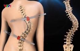 Phương pháp mới trong phẫu thuật, chỉnh hình cột sống