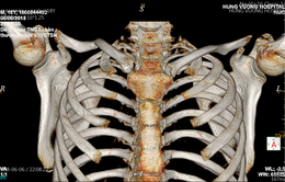 Cứu sống bệnh nhân tràn khí màng phổi nặng do tai nạn giao thông
