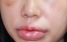 Sưng nề mắt và môi do tiêm chất làm đầy tại thẩm mỹ viện