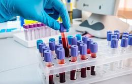 Xét nghiệm máu mới có thể phát hiện 10 bệnh ung thư