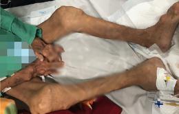 10 năm tự mua thuốc trị gout, người đàn ông bị biến dạng tay chân