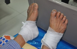 Chườm nóng bằng lá ngải cứu, bệnh nhân đái tháo thường bị bỏng độ 3