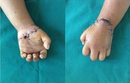 Nối thành công bàn tay đứt rời cho bé gái 31 tháng tuổi