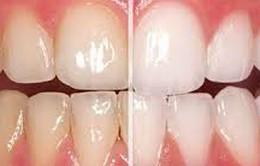 Tại sao răng lại bị chuyển màu ố vàng
