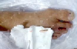 Bệnh nhân đái tháo đường sưng chân suốt 5 tháng vì dẫm phải dằm