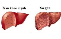 Những điều đáng lưu ý về bệnh xơ gan