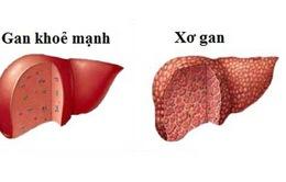 5 biến chứng nguy hiểm của bệnh xơ gan bạn cần biết