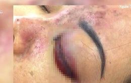TP.HCM: Thêm 1 nạn nhân bị mù mắt do tiêm filler