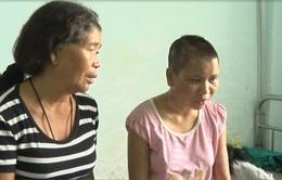 Bộ LĐTBXH yêu cầu xử lý nghiêm vụ chủ nhà tra tấn, đánh đập dã man người làm công tại Gia Lai