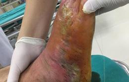 Hoại tử bàn chân sau khi đắp thuốc nam chữa rắn cắn