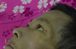 Những nỗi thống khổ ở nơi điều trị viêm gan
