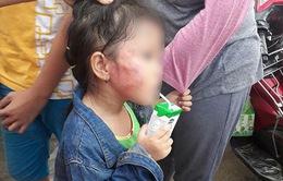 Tạm giữ hình sự bảo mẫu tát bé gái sưng mặt ở TP.HCM