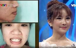 Change Life 2018: Cô gái 9X xinh như búp bê sau phẫu thuật thẩm mĩ