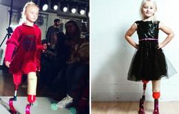 Cô bé 7 tuổi khuyết tật bẩm sinh gây chấn động làng thời trang thế giới
