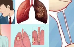 8 dấu hiệu cảnh báo sớm ung thư phổi