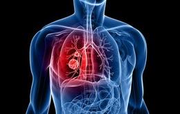 Gia tăng số ca mắc ung thư phổi tại Việt Nam
