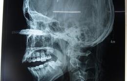 Lưỡi cưa gần 12cm bắn vào mắt nam thanh niên 21 tuổi