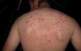 Mỹ cảnh báo công dân về dịch sốt thương hàn ở Pakistan