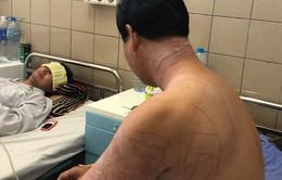 Du khách nhập viện vì bị sứa đốt