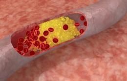 6 tác hại nguy hiểm của bệnh máu nhiễm mỡ